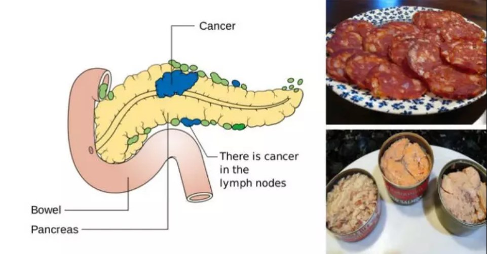 10 Cancer-Linked Foods You Should Never Put in Your Mouth Again