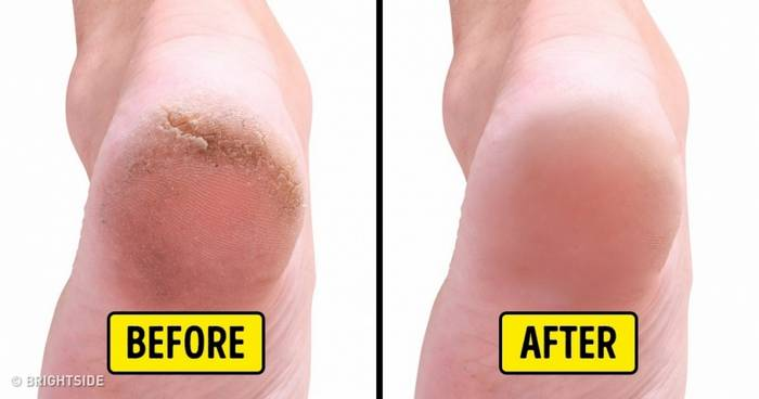 10 Home Remedies to Remove Cracked Heels and Get Beautiful Feet