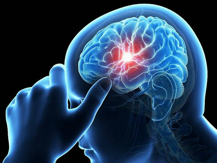 10 Types of Seriously Dangerous Headaches That You Should Never Ignore