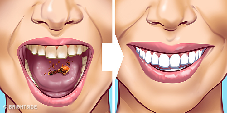 10 Ways to Remove Tartar Stains From Your Teeth