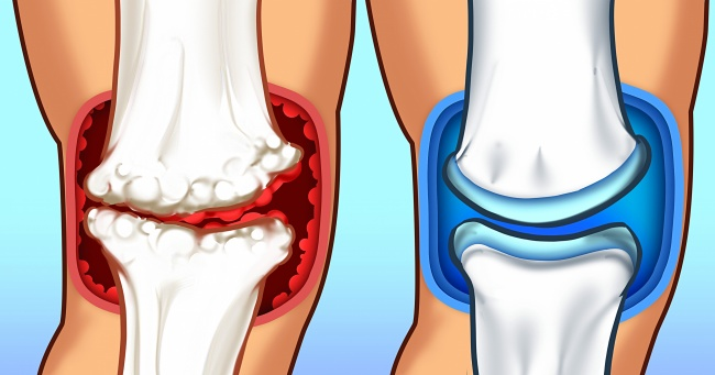 15 Benefits of Foods for Relieving Joint Pain