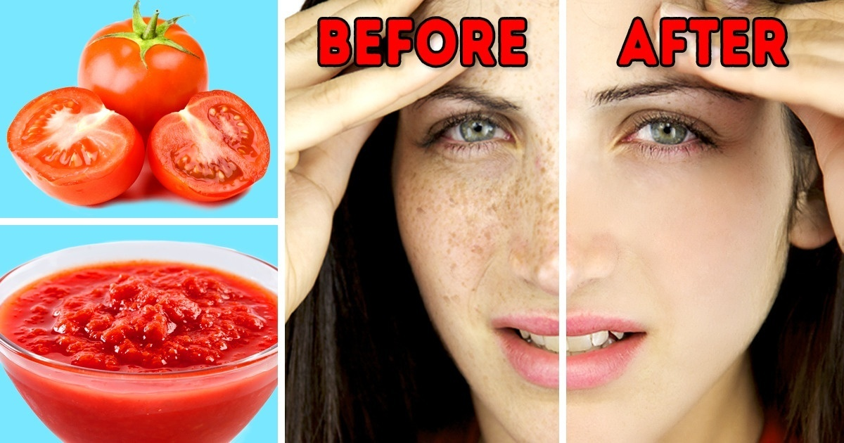 16 Tips to Get Rid of Sunspots With Natural Remedies