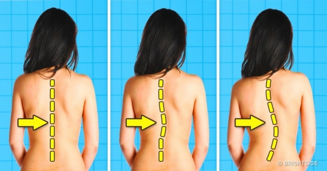 8 Everyday Activities That Can Damage Your Spine