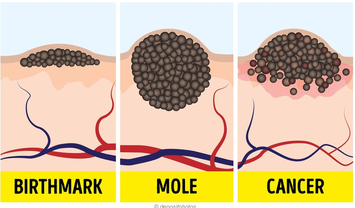 9 Dangerous Myths About Moles and Suntan That Even Some Doctors Seem to Believe In