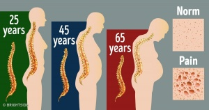 9 Everyday Habits That Destroy Your Spine