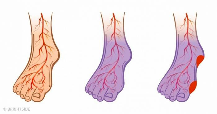 If You Have High Blood Pressure, Strokes or Varicose Veins, Start Doing These 7 Things