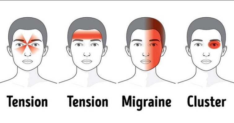 This Is What Causes Headaches and How Best You Can Get Rid Of Them