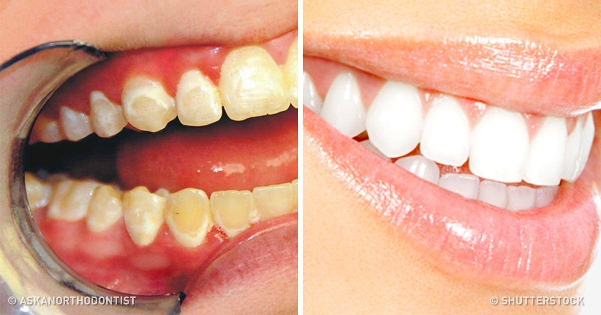 What Foods We Need to Eat to Keep Our Teeth Healthy and White