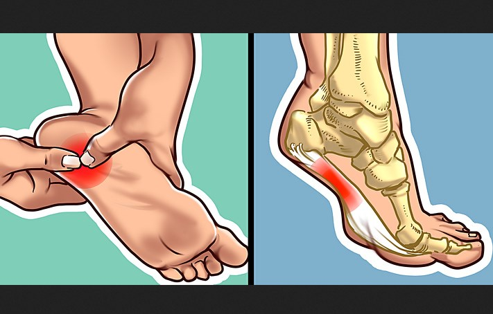 What to Do If Your Heel Hurts in the Morning or Every Time You Stand Up