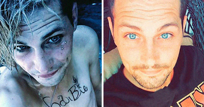 40 Stunning Before & After Transformations Of People Who Quit Drugs (New Pics)
