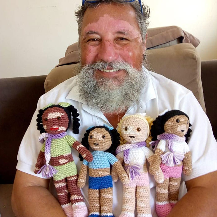 This Grandfather With Vitiligo Crochets Dolls For Children With The Condition