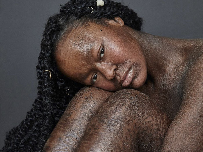 Woman Who Sheds Skin Every Two Weeks Becomes Probably The First Model Who Has This Condition