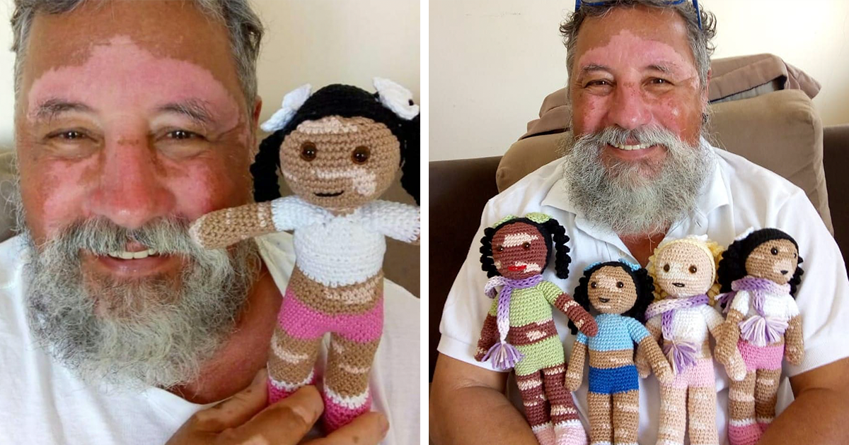 Grandfather With Vitiligo Spends His Time Knitting Dolls That Help Children With The Condition To Feel 'Normal