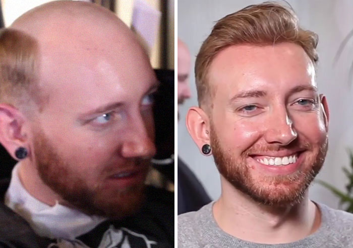Before-After-Hair-Replacement-Phildoeshair