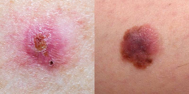 Here's Exactly What Different Types of Skin Cancer Look Like