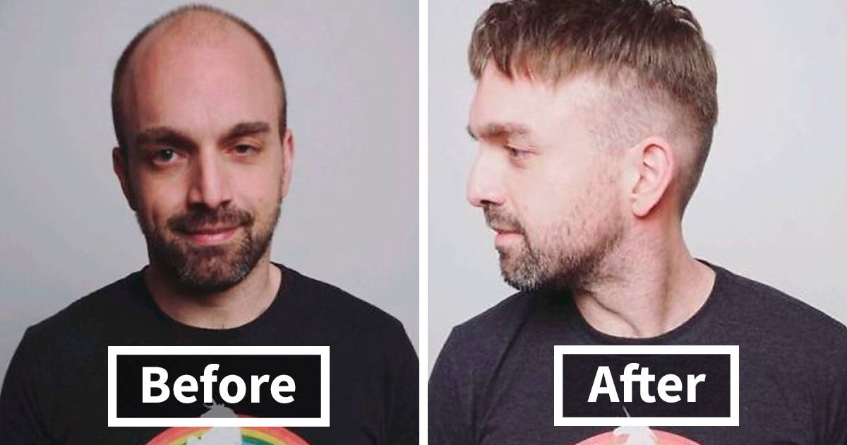 59 Men Before And After Getting Non Surgical Hair Replacements