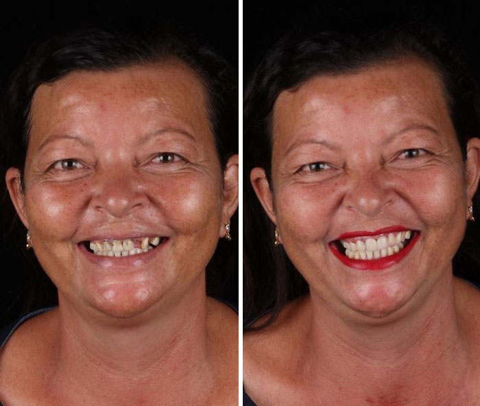 Brazilian-Dentist-Travel-Poor-People-Teeth-Fix-Felipe-Rossi