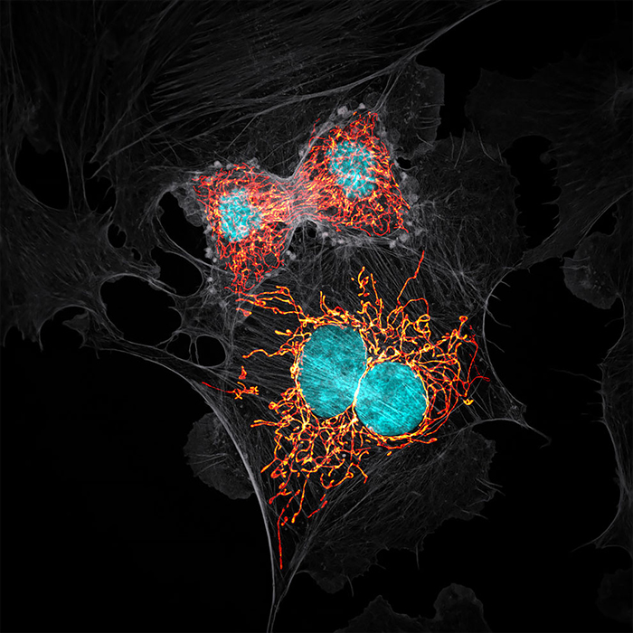BPAE Cells In Telophase Stage Of Mitosis