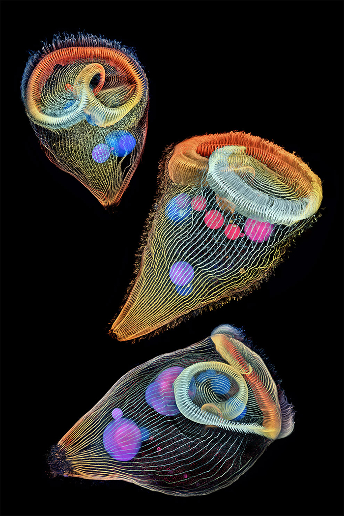Depth-Color Coded Projections Of Three Stentors (Single-Cell Freshwater Protozoans)