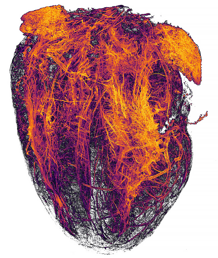 Blood Vessels Of A Murine (Mouse) Heart Following Myocardial Infarction (Heart Attack)