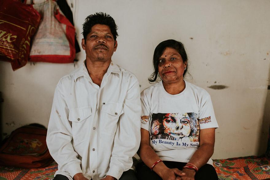 Anil And Madhu (India)