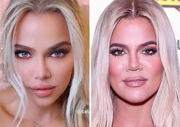 Completely Changed Her Face Structure