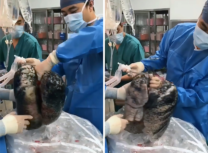 Surgeons Show What The Human Lungs Look Like After 30 Years Of Smoking & It's Shocking