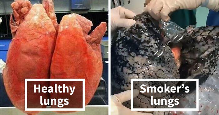 Image result for black lung