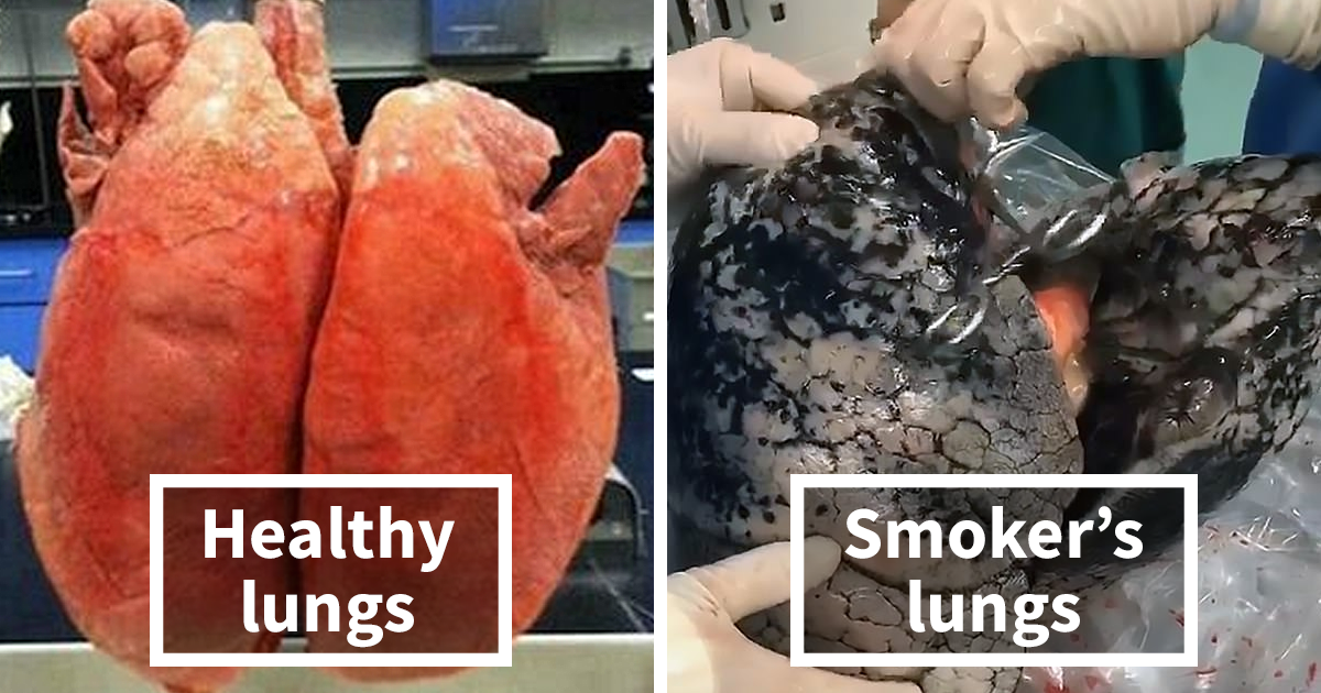 Shocking Video Shows What 30 Years Of Smoking Does To The Human Lungs