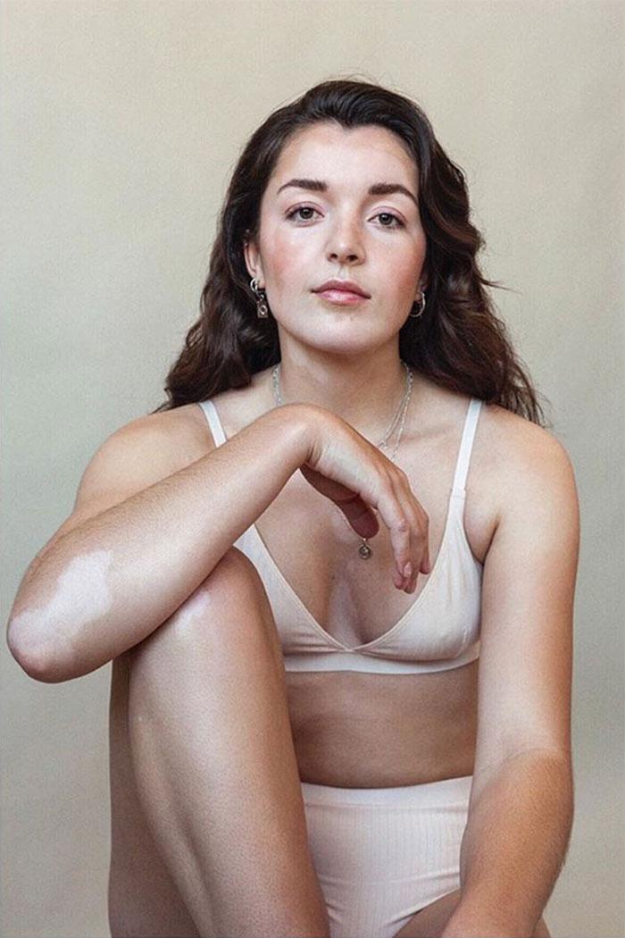 Vitiligo-Beauty-Photography-Elisabeth-Van-Aalderen