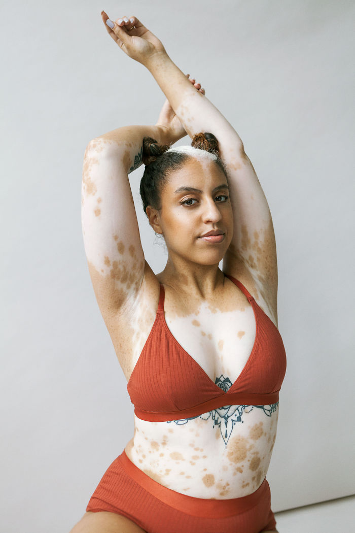 Vitiligo-Beauty-Photography-Elisabeth-Van-Aalderen