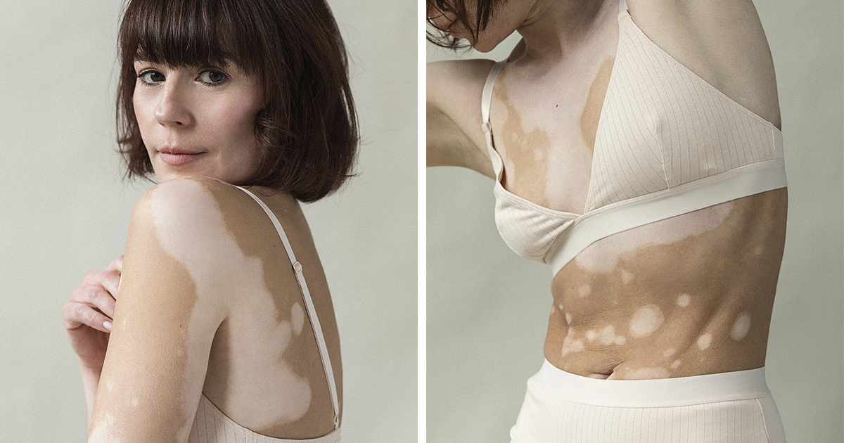 Photographer Develops Vitiligo, Creates A Series Featuring Other Women Who Suffer From The Skin Condition