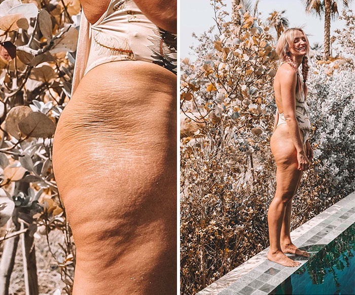 Influencer Being Real & Opening Up About Insecurities With Her Body