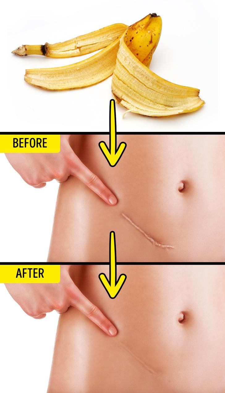 10 Unusual Ways to Use Banana Peels