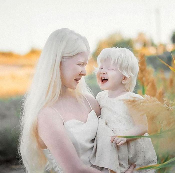 Albino Sisters