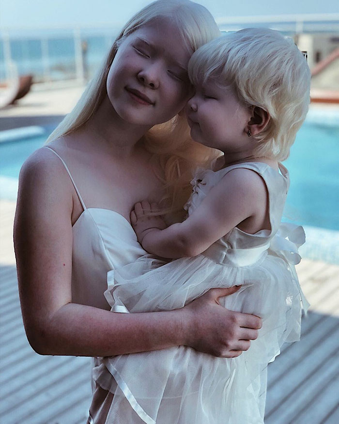 Albino Sisters Born 12 Years Apart Stun The World With Their Extraordinary Beauty (24 Pics)