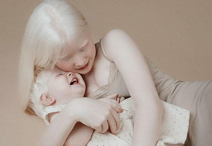 Estas hermanas albinas se llevan 12 años, pero asombran al mundo con su belleza (24 fotos)