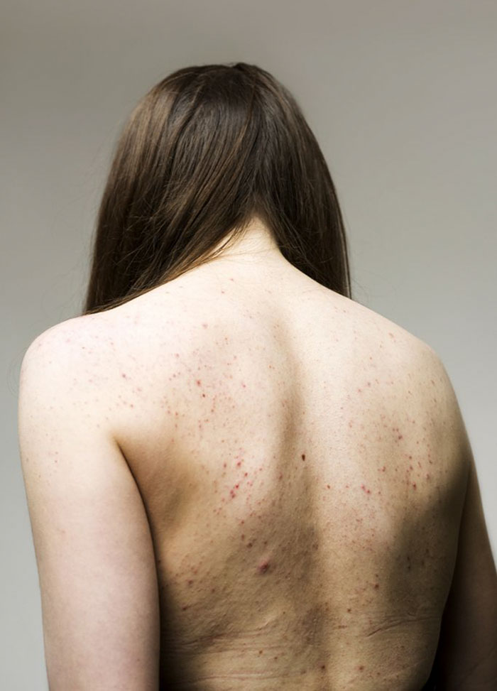 Women-Skin-Problems-Epidermis-Project-Sophie-Harris-Taylor