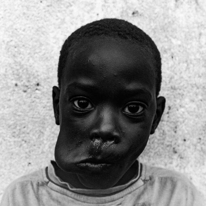"""""""Boy Eating Mango - São Tomé 2018"""" By Theo Gould, UK (2nd Place In The Portrait Category)"""