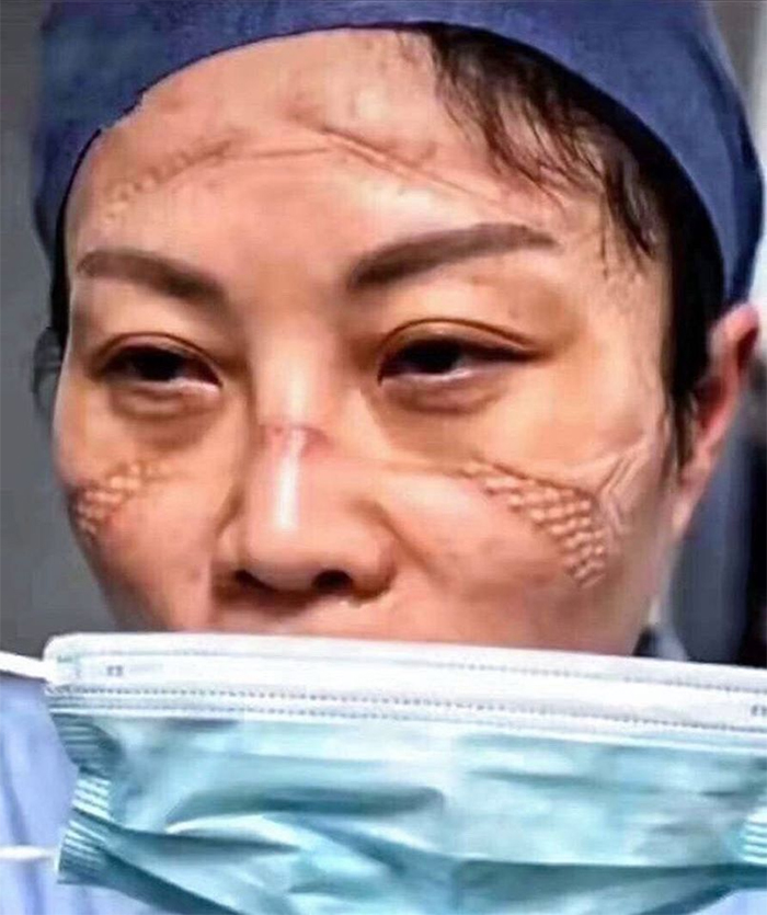 Chinese Nurses Share Pictures Of How Their Faces Look After ...