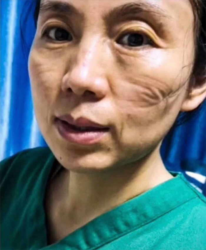 Chinese Nurses Share Pictures Of How Their Faces Look After Countless Hours Fighting The Coronavirus
