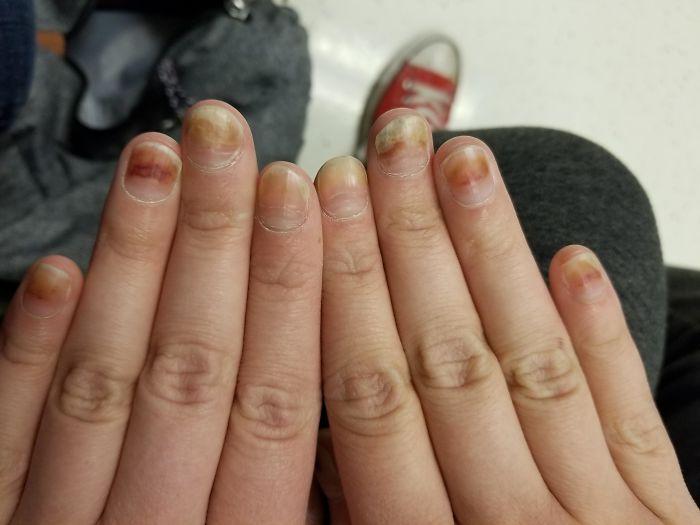 Mis uñas empujando la quimio de mis dedos