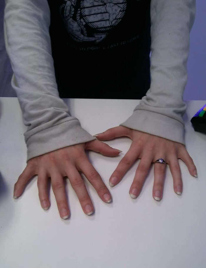 Customer Came In And Let Me Take A Picture Of Her Hands That Had 6 Fingers On Each