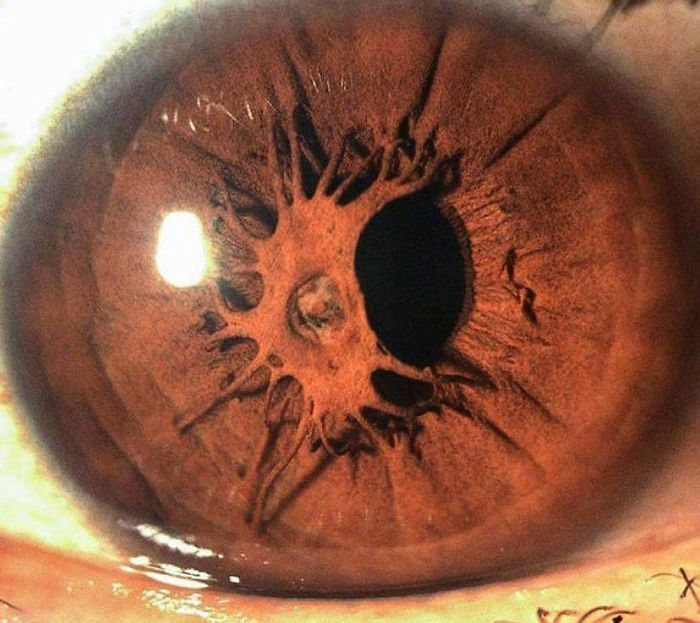 This Person Has An Iris Growing Over A Pupil