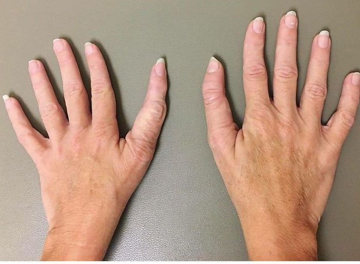 This Person Has A Thumb With Three Phalanges Instead Of Two