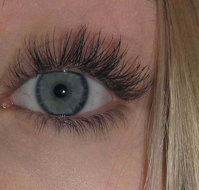 I Have A Condition Caused Distichiasis That Causes My Eyelashes To Grow In Multiple Rows