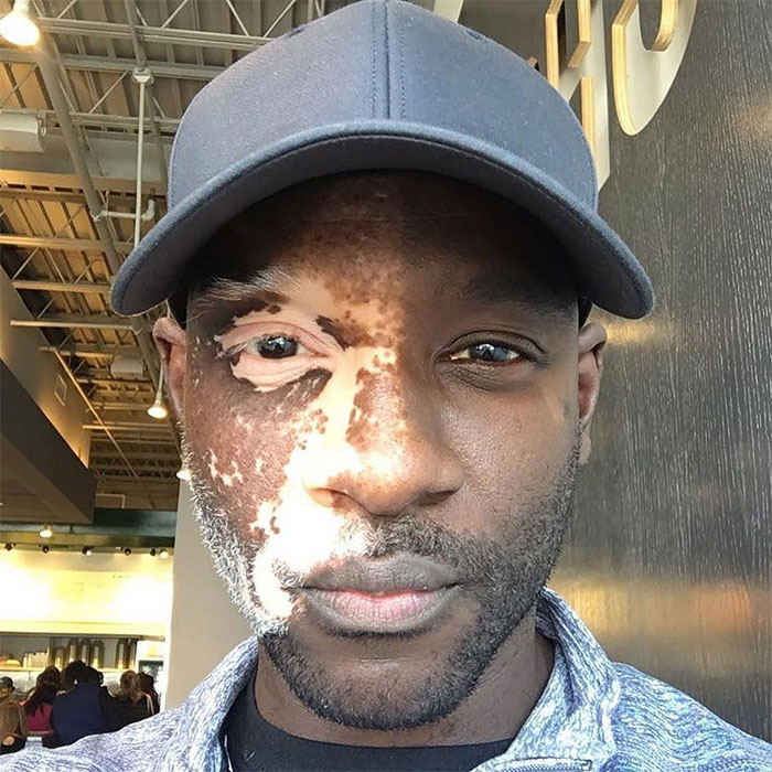 Vitiligo Affecting One Side Of A Man's Face