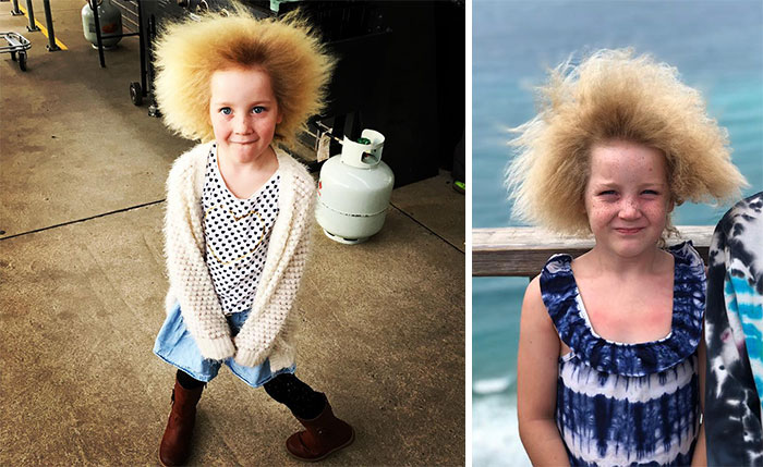 Uncombable Hair Syndrome Is Real: There Are Only About 100 People In The World Known To Have This Genetic Condition