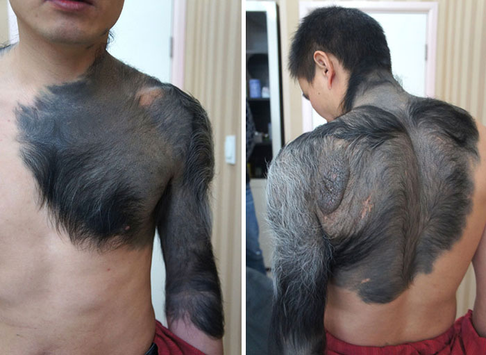 Zhang Hongming Suffers From Rare Congenital Giant Pigmented Nevus, Commonly Know As Giant Furred Moles