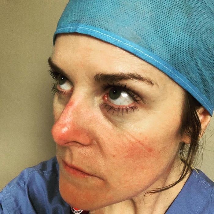 """Nurse Shows What She Calls Her """"Battle Scars"""""""